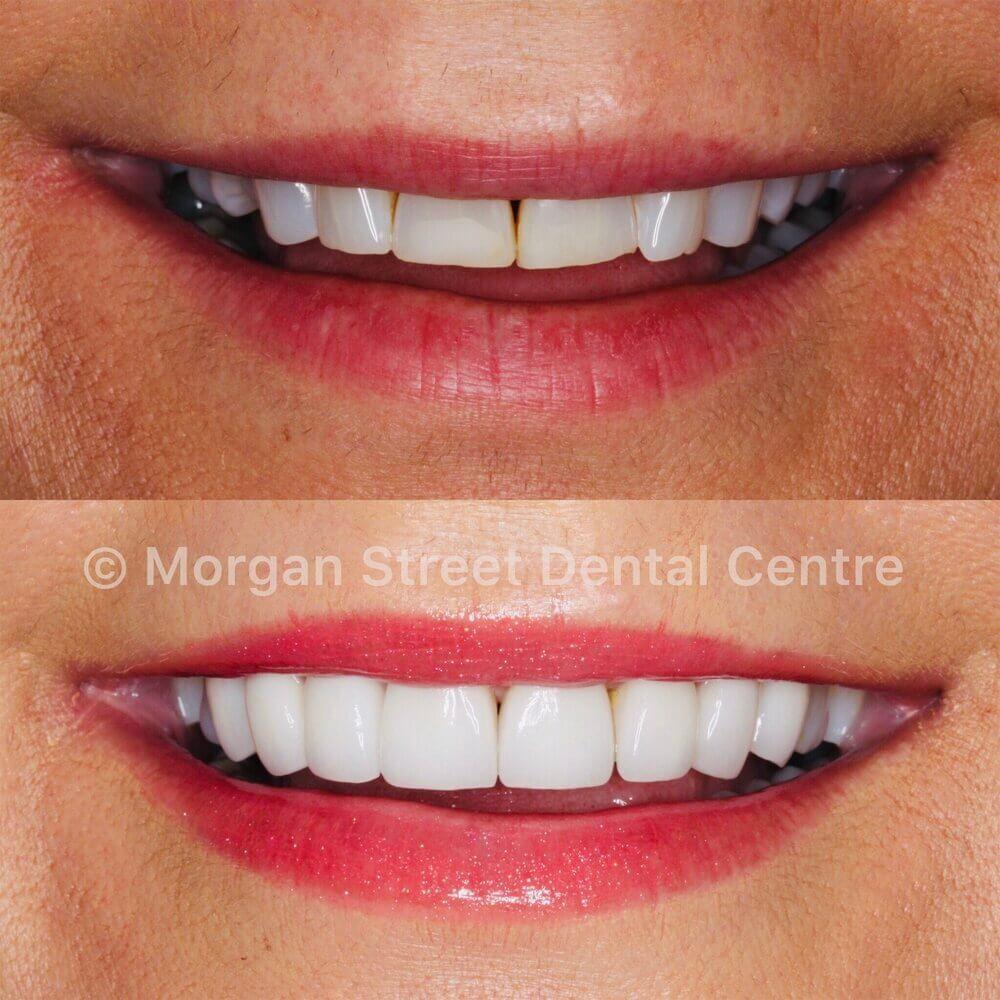 How Do Dental Veneers Work Blog on Morgan Street Dental Centre - Dental Porcelain Veneers Comparison
