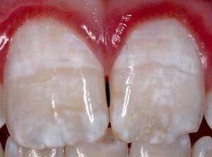 Dentist FAQ - White Spots On My Teeth on Morgan Street Dental Centre - White Spots on Teeth with Reddish Gum whitespotteethwagga