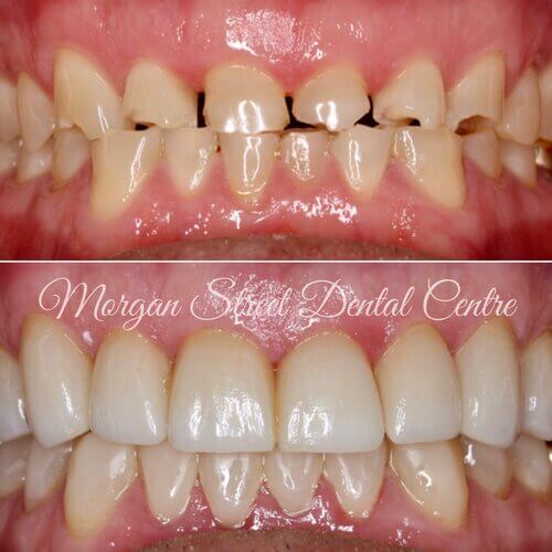 Dentist FAQ - Causes Transparent Teeth on Morgan Street Dental Centre - Before and after Dental Treatment Comparison