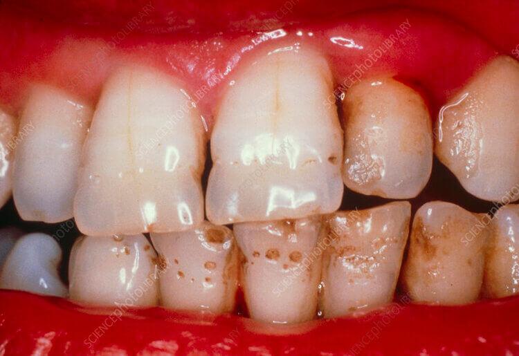 Dentist FAQ - Causes Transparent Teeth on Morgan Street Dental Centre - Teeth Discoloration and Stains Enamel Hypoplasia