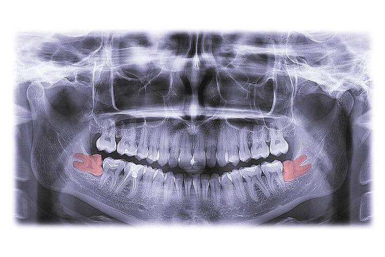 Morgan Street Dental Centre Wisdom Teeth Extraction - Dental X-ray with Molar Teeth wisdom-teeth