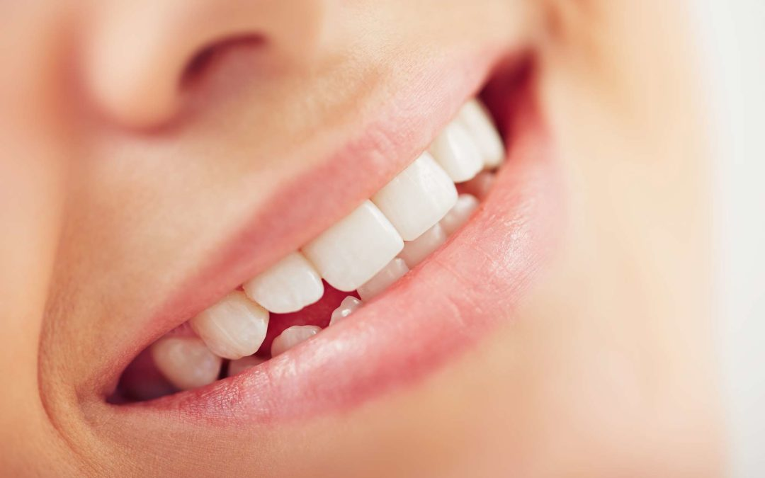 Composite vs. Porcelain Dental Veneers – Which is Better?