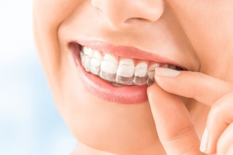 Morgan Street Dental Centre Cosmetic Dentistry Image - Orthodontic Services - Woman with Invisalign