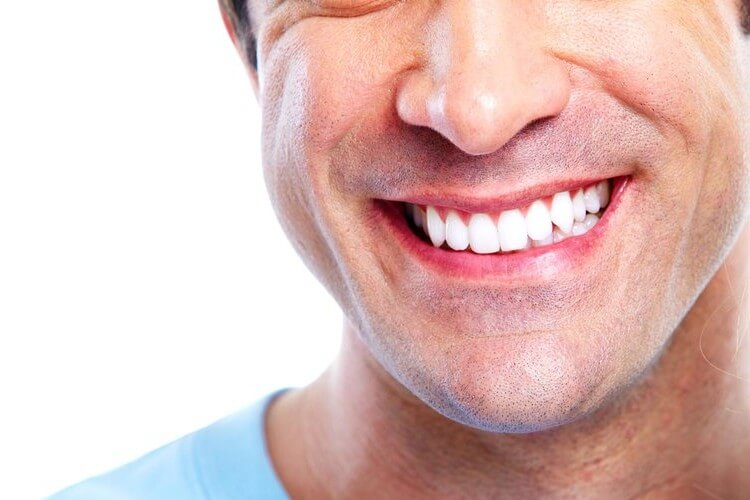 Morgan Street Dental Centre Dental Crowns - Man with Great White Teeth Smiling
