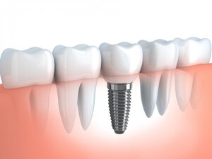 Morgan Street Dental Centre Dental Implants Image - Single Tooth Implant Image Illustration