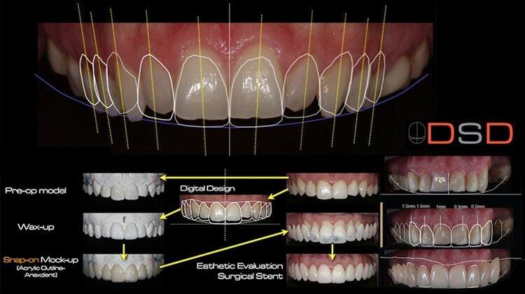 Morgan Street Dental Centre Dental Practice Technology - Digital Smile Design Computer Design Illustration