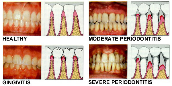 Morgan Street Dental Centre Gum Disease Family Dentistry- Gum Disease Illustration Compared to Healthy Teeth