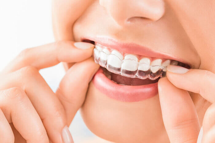 Morgan Street Dental Centre Orthodontics - Invisible Aligners Held with Two Hands in the Mouth
