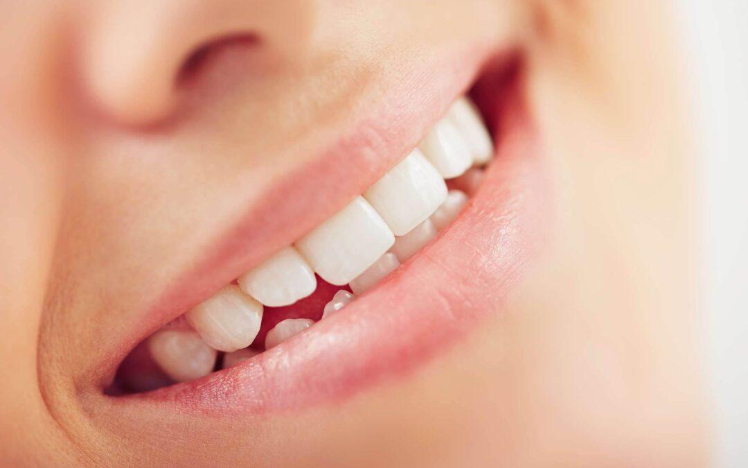 Composite vs. Porcelain Dental Veneers – Which is Better?