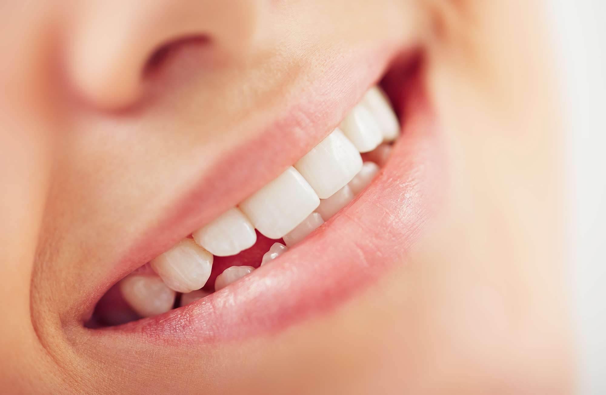 Morgan Street Dental Centre Porcelain Dental Veneers - Great Looking Perfect White Teeth Smiling Woman