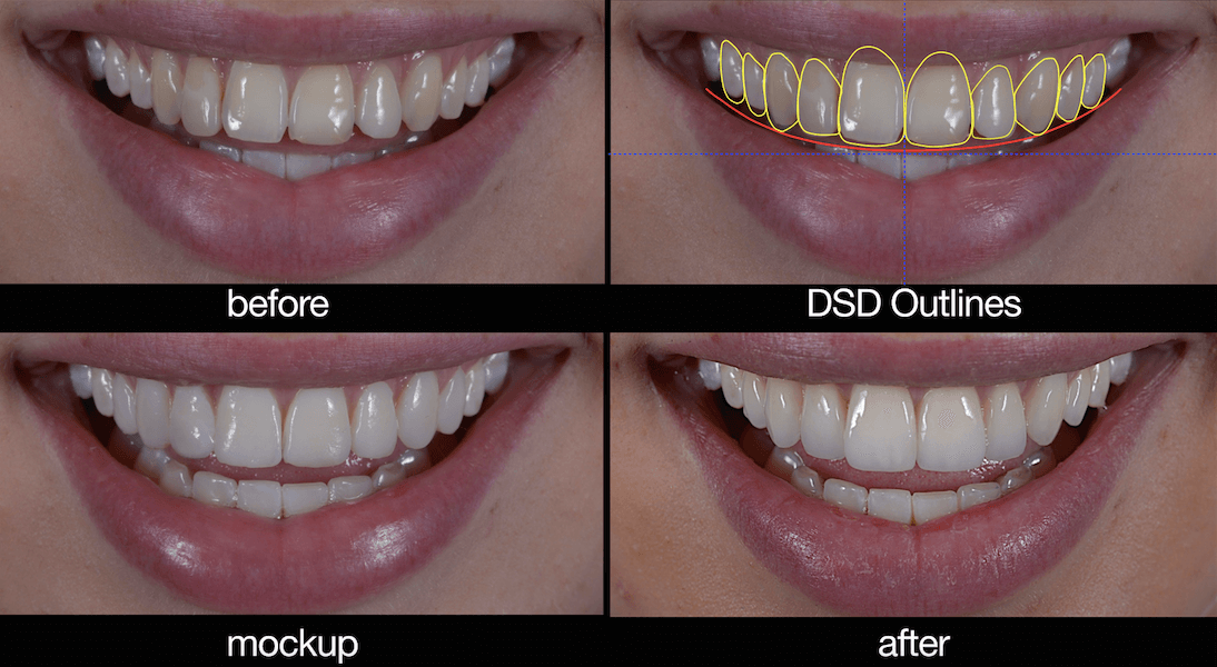 Morgan Street Dental Centre Smile Design Wagga- Smile Design Before and After Mock Illustration on Computer