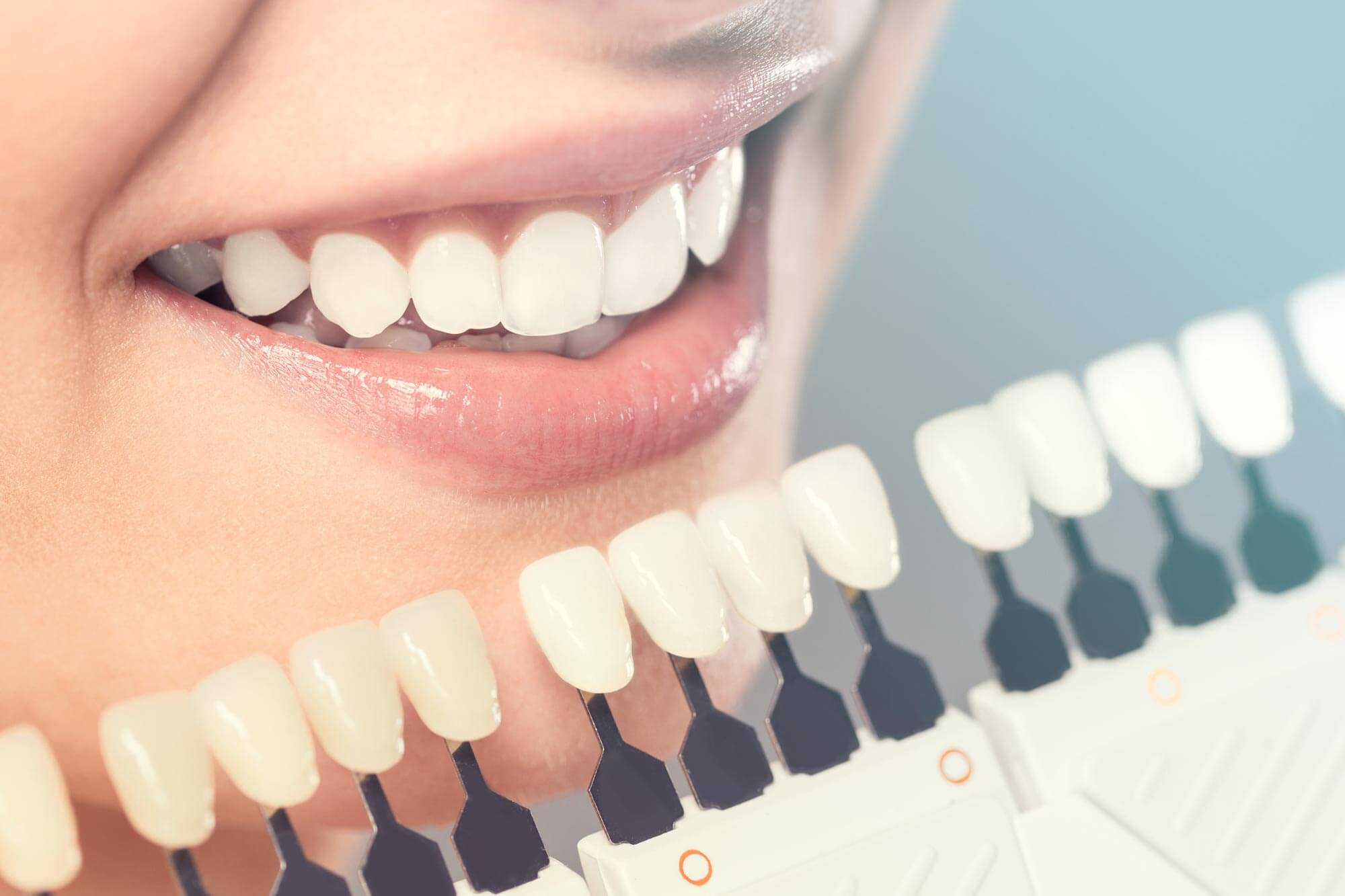 Morgan Street Dental Centre Teeth Whitening Wagga - Woman with Great White Smile Compared to Teeth Model