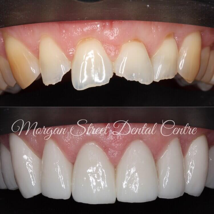 Cosmetic Dentistry Wagga Wagga at Morgan Street Dental Centre - Before and After Cosmetic Dentistry Comparison