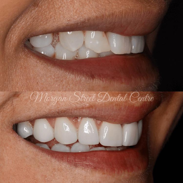 Morgan Street Dental Centre - Porcelain Veneers Before and After Image dentistwaggaporcelainveneers1