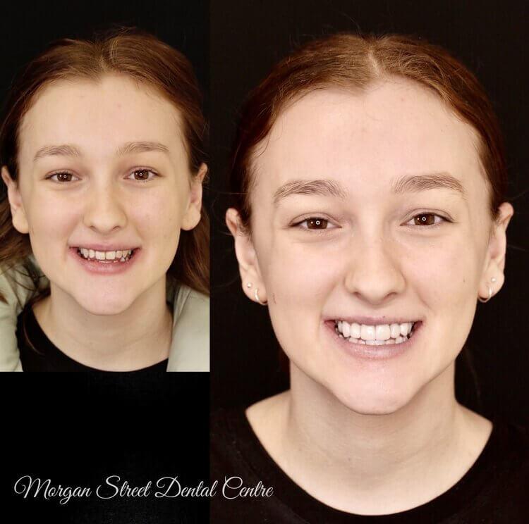 Morgan Street Dental Centre - Porcelain Veneers Before and After Image in Female Teen dentalwaggaporcelainveneers